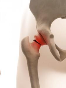 Fractured Hip