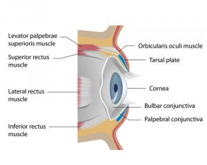 vision loss cases