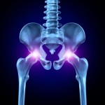 hip replacement lawsuit
