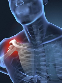 Fractured Shoulder Verdicts and Settlements in Maryland |Value of Case