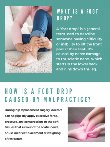 image describing what a foot drop is and how it relates to medical malpractice