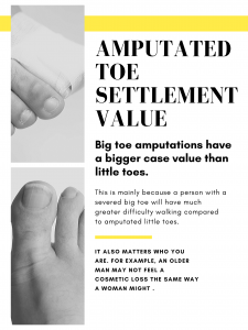image describing the settlement value of an amputated toe