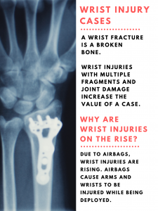 image describing what a wrist injury is and why they are on the rise